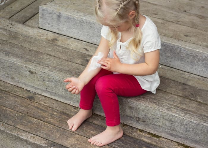 Чесотка у детей - причины, симптомы и лечение