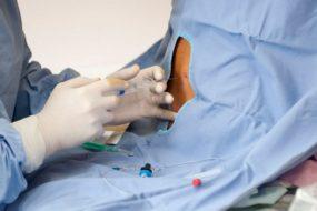Эпидуральная анестезия при родах — отзывы, показания и последствия