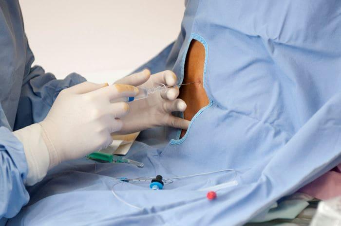 Как действует эпидуральная анестезия. Сколько действует эпидуральная анестезия? Варикозная болезнь: этиология, патогенез, клиническая картина